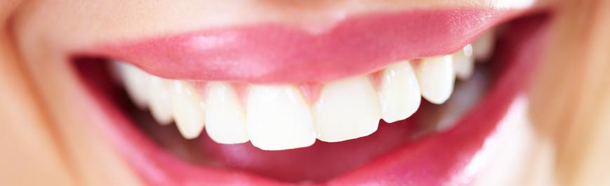 Zahnaufhellung & Pflege